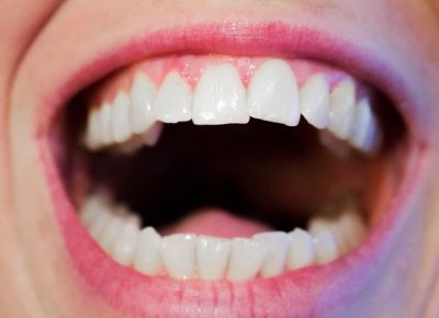 teeth-1652937_640